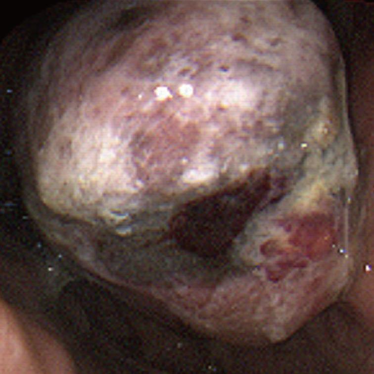 malignant melanoma case study